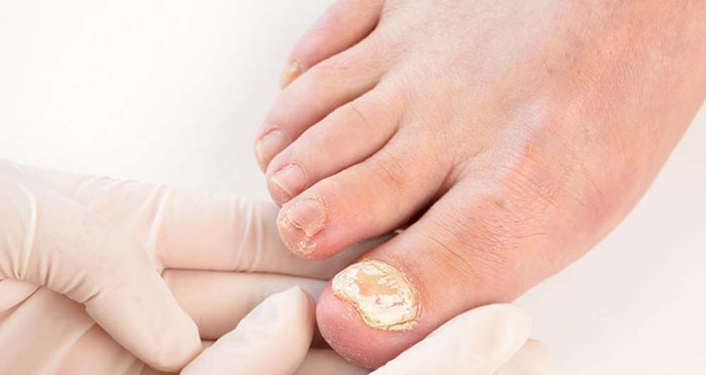 wirral podiatry
